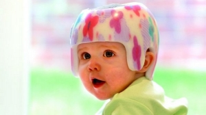 capacete-bebe-cerebro-cranio-div-20120719-size-598