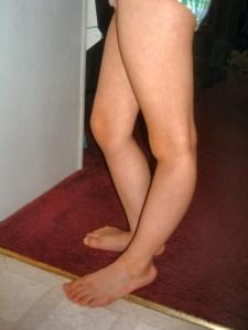 hyper-knees